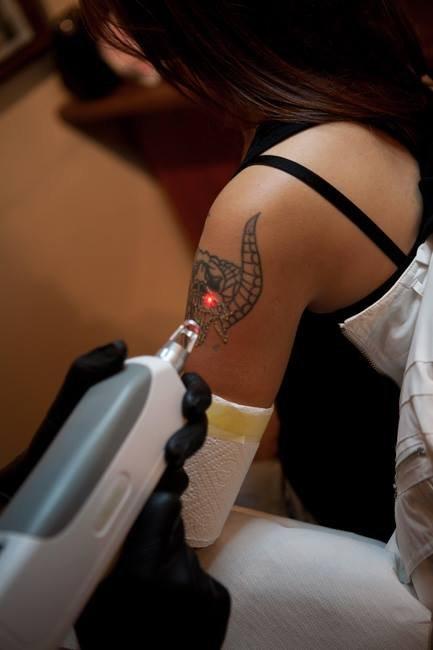 Profesjonalne usuwanie tatuaży!
