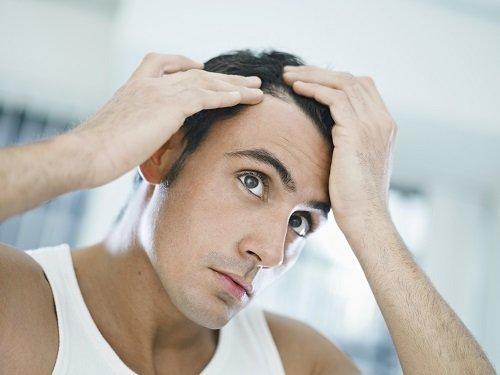 Przeszczep włosów, sposób na wypadanie włosów